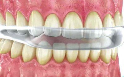 Bruxismo y férulas dentales